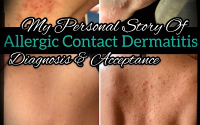 My Personal Story Of Allergic Contact Dermatitis – Diagnosis And Acceptance [Part 1]