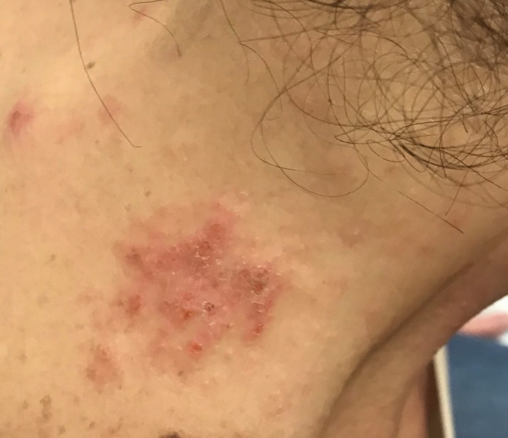 Skin Rash on Neck 1-4-19